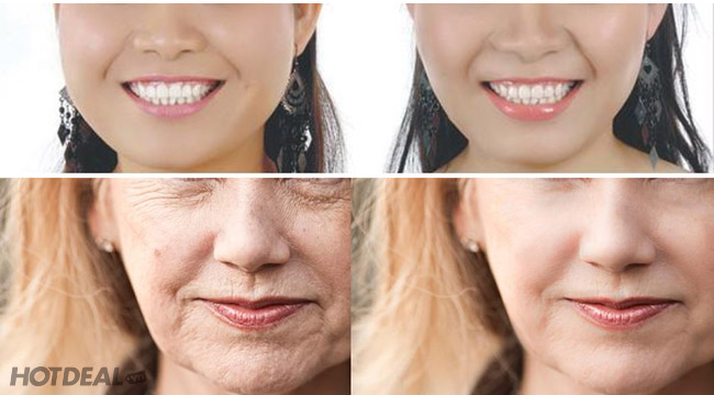 Trẻ Đẹp Hơn 5 Tuổi, Căng Da Mặt, Săn Cơ, Nhỏ Gọn, Trẻ Hóa Trắng Mịn Da Mặt