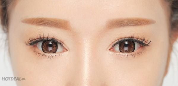 Trị Thâm Mắt, Tan Bọng Mỡ Mắt, Xóa Nếp Nhăn Mắt - Minh Huyền Spa