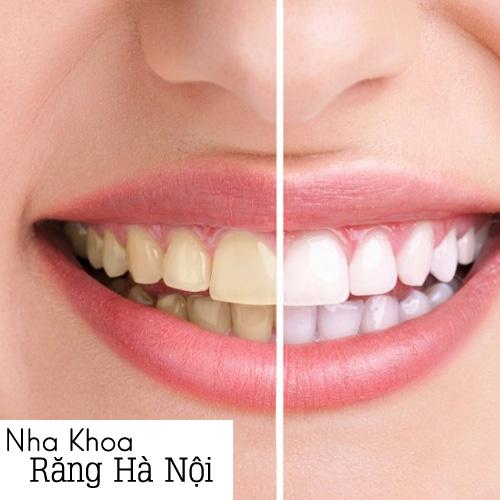 Lấy Cao Răng, Đánh Bóng Và Hàn Răng Tại Nha Khoa Răng Hà Nội