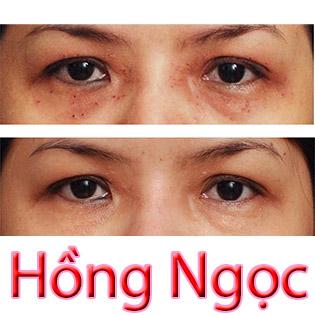 Trị Thâm Mắt, Tan Bọng Mỡ Mắt, Xóa Nhăn Mắt TMV Hồng Ngọc tại Hồ Chí Minh