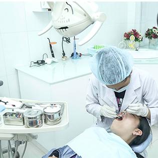Cao Vôi Và Đánh Bóng Răng Tại Nha Khoa Minh Châu